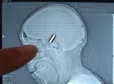 رصاصة طائشة تخترق رأس شاب في عوجان بالزرقاء