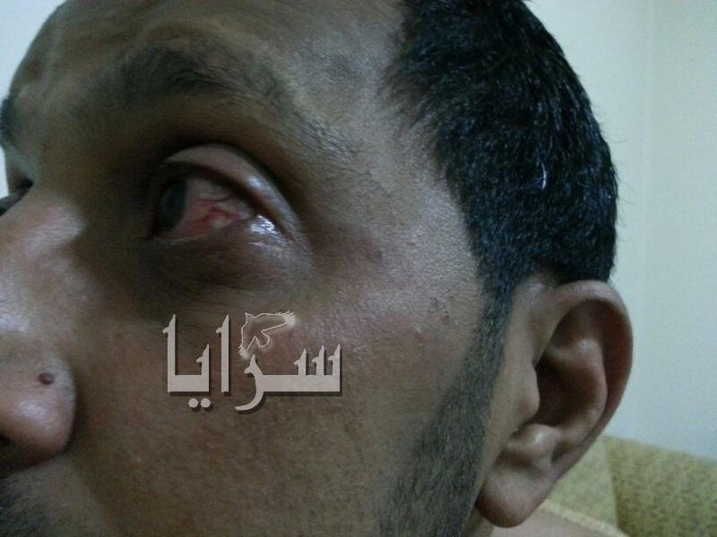 """مواطن أردني تعرض للضرب في لبنان والسفارة الاردنية ترد """"دبر حالك"""""""