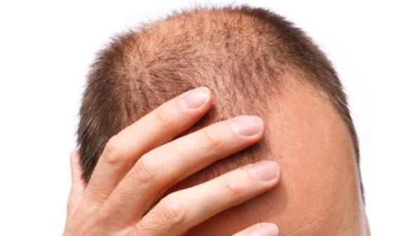 وداعاً للصلع ..  علماء يطورون طريقة لاستنبات الشعر
