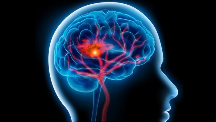 هكذا يمكنك تجنب التعرض للسكتة الدماغية