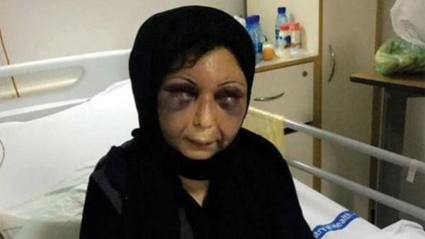 صور مؤلمة جديدة للسورية المُعنفة في البحرين  ..  وجريمة جديدة بحقها