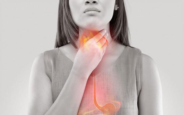 8 نصائح تجنّبك الإصابة بالحموضة أثناء الصيام