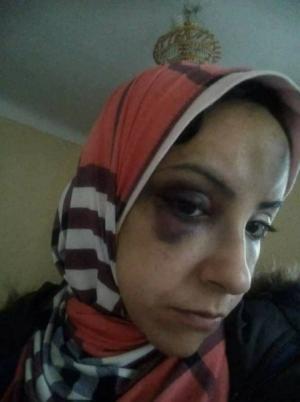 فتاة تتعرض للضرب المبرح على يد اهل زوجها لسبب صادم  ..  صور
