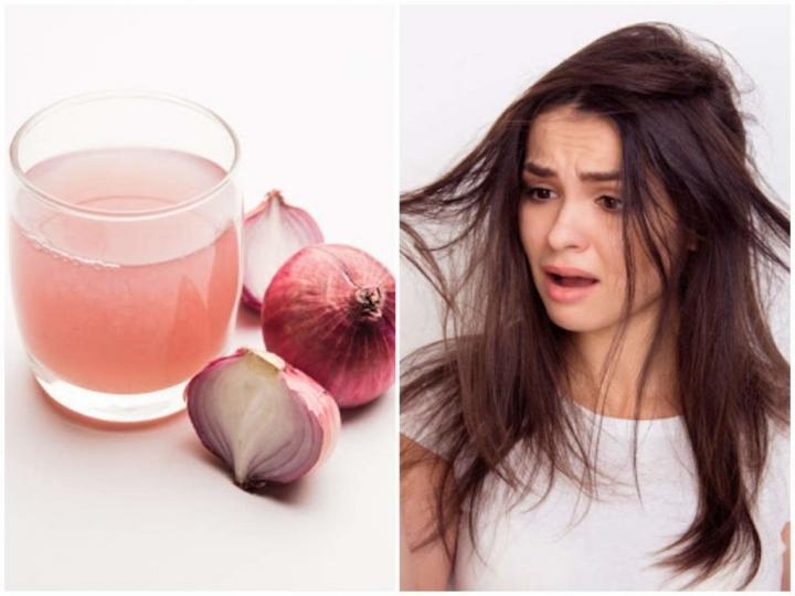 تعرّفي على فوائد عصير البصل على الشعر