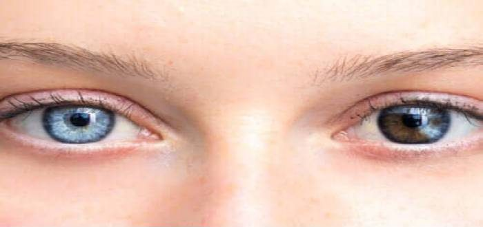 أمراض تغير لون العين