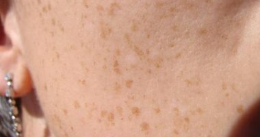 5 أسباب لظهور البقع البنية فى جسمك وطرق علاجها