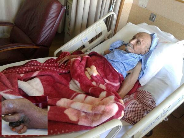 """الغرغرينا"""" تأكل جسد """"مئوي"""" في جده ومستشفى الملك فهد يرفض علاجه"""
