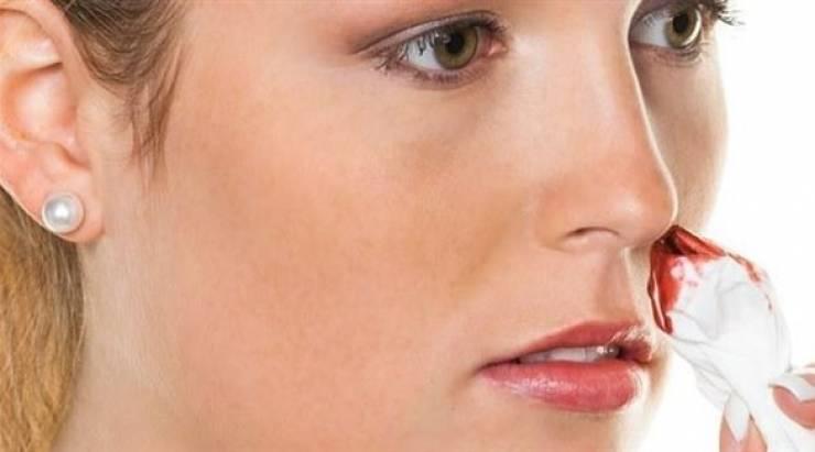 نزيف الأنف المتكرر ينذر بالإصابة بهذا المرض