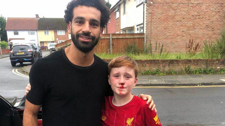 قصة صورة محمد صلاح مع طفل يرتدي قميص ليفربول وينزف من أنفه