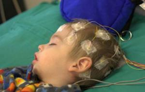 طفلة الـ 8 سنوات تُعاني من الصرع ولا تملك ثمن صورة الرنين المغناطيسي