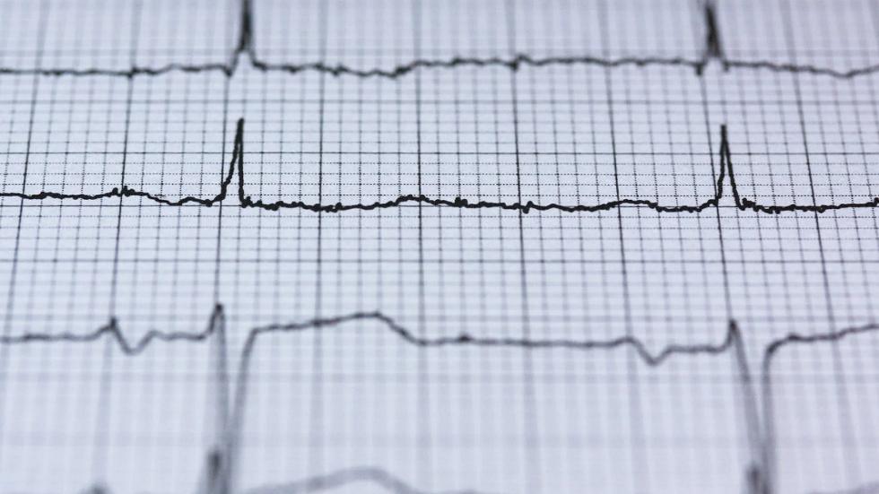 """علامات """"غير عادية"""" لأمراض القلب تظهر على الجلد"""