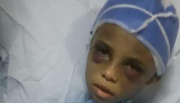 تفاصيل تعذيب طفلة مصرية على يد خالتها ..  والكشف عن سبب غياب الأم