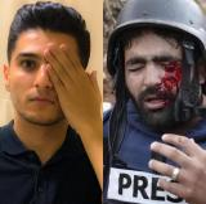 محمد عساف يغطي عينه تضامناً مع الصحافي الفلسطيني معاذ عمارنة