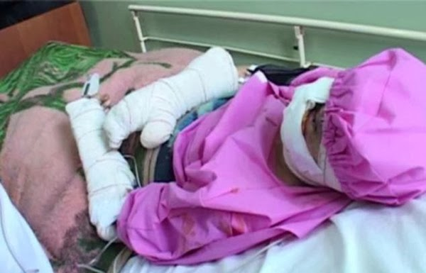 صور: مدمن يعذب زوجته ويقطع أذنيها وشفتيها بالسكين