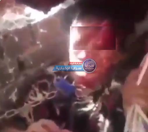 """فيديو تقشعر له الأبدان  ..  """"بابا اقتلني"""" صرخة تفطر القلوب ..  الطفل المعنف """"محمد"""" يطلب الموت لإنهاء معاناته"""