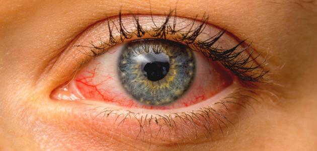 3 أعراض تصيب العين تكشف عن سرطان الرئة