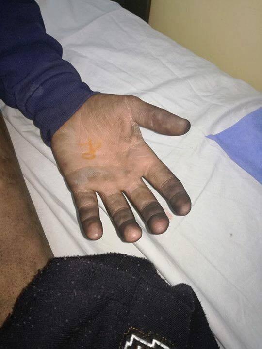 عمان : اصابة فتى بجروح و حروق اثر انفجار بطارية هاتف سامسونج في جيبه ..  صور