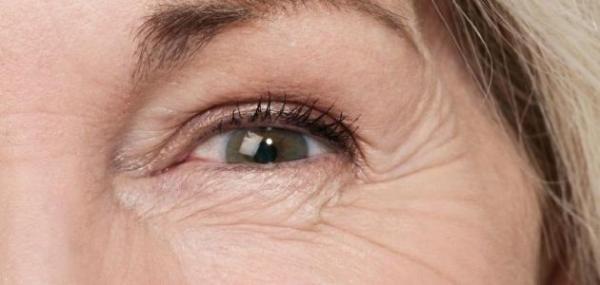 علاجات طبيعية للقضاء على تجاعيد العيون