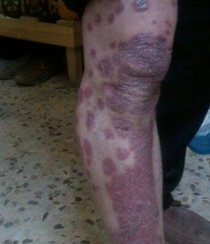"""شاب اردني يناشد أهله الخير معالجته من مرض """"الصدفية"""" (صورة)"""