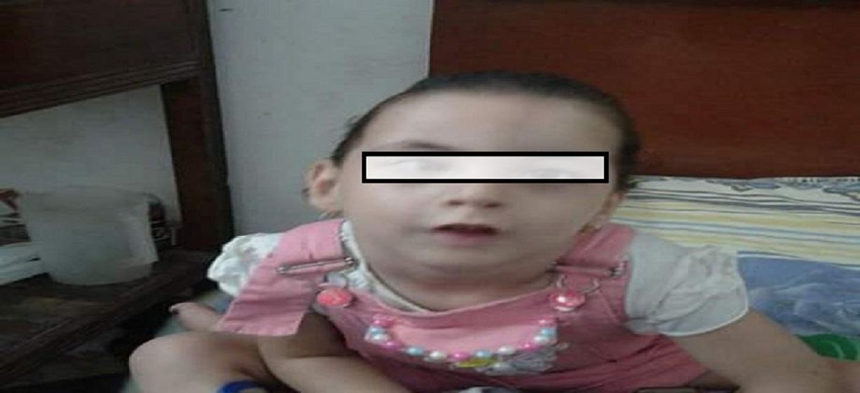 طفلة عمرها (4) سنوات تعاني من ضمور بالعين تناشد اهل الخير لتوفير عين اصطناعية لها