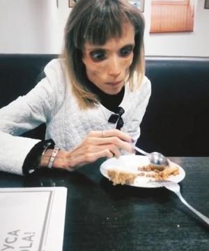 بالصور ..  مشهد يُقشعر الأبدان ..  كيف أصبح شكل فتاة لم تناول الطعام منذ 10 سنوات؟