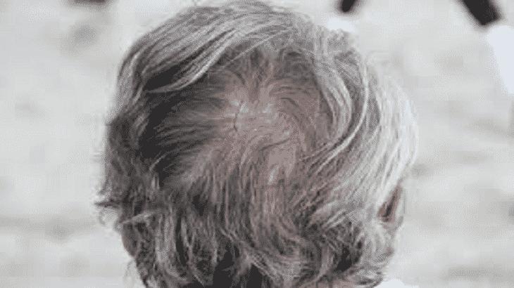 تفسير رؤية الشيب الشعر الأبيض في المنام