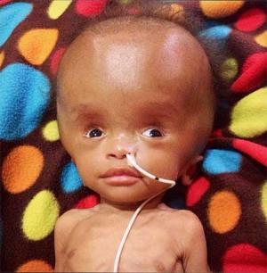 بالصور.. عثروا على هذه الطفلة في كومة نفايات!