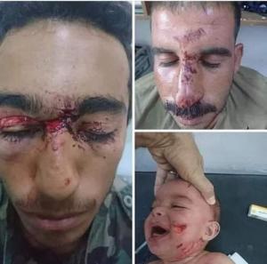 سوريون ينقذون رضيعاً من أنياب ذئب!
