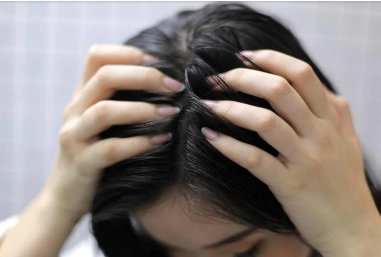 طريقة تنظيف فروة الرأس من الرواسب والقشرة
