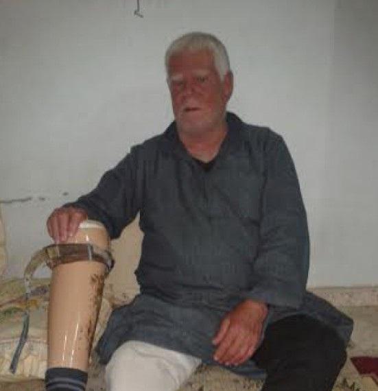 """بالصور : بترت ساقه في الهجوم الاسرائيلى  .. """"فرحات"""" الفلسطيني يروي تفاصيل الحرب"""